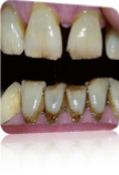 Kranke Zähne