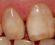 Die Zahnfarbe
